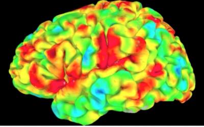 Lesões corticais agudas na síndrome MELAS: Distribuição anatômica, simetria e evolução