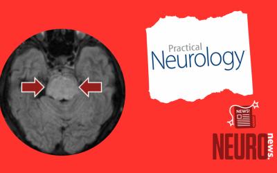Central pontine (and extrapontine) myelinolysis despite appropriate sodium correction