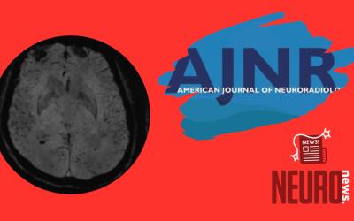 Achados de neuroimagem na COVID-19