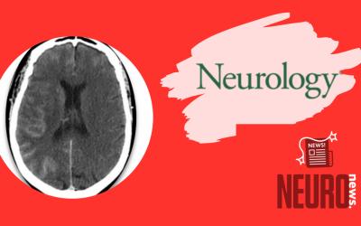 Contrast-induced encephalopathy following coronary angiography