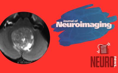 Pediatric Posterior Fossa Medulloblastoma: The Role of Diffusion Imaging in Identifying Molecular Groups