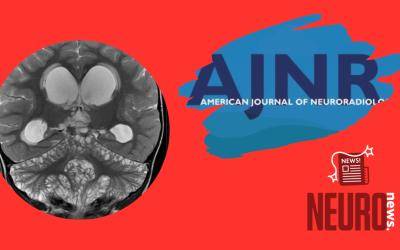 Diffuse Leptomeningeal Glioneuronal Tumor of Childhood