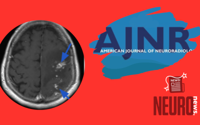 Delayed Leukoencephalopathy:  A Rare Complication after Coiling of Cerebral Aneurysms