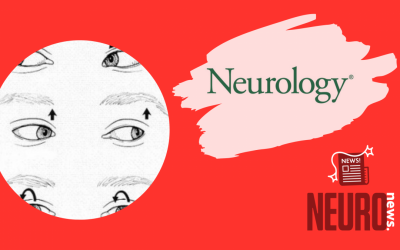 Positional vertigo and vertical nystagmus in medulloblastoma