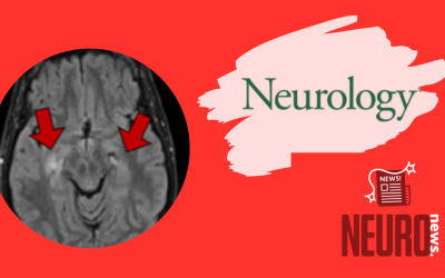 Mystery Case: Anti-NMDAR encephalitis with overlapping demyelinating syndrome
