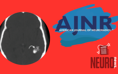 Polymorphous Low-Grade Neuroepithelial Tumor of the Young as a Partially Calcified Intra-Axial Mass in an Adult