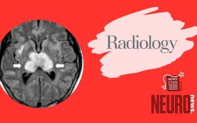 COVID-19–associated Acute Hemorrhagic Necrotizing Encephalopathy: CT and MRI Features