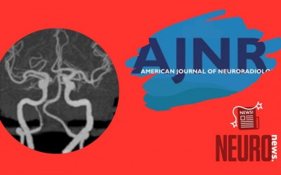 Reliability of CT Angiography in Cerebral Vasospasm: Review of the Literature and an Inter- and Intraobserver Study