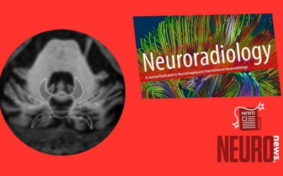 """The """"crab sign"""": an imaging feature of spinocerebellar ataxia type 48"""