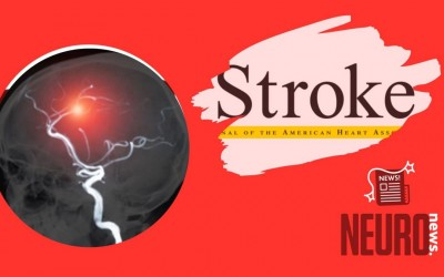 Stroke Etiology and Thrombus Computed Tomography Characteristics in Patients With Acute Ischemic Stroke