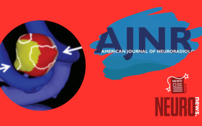 Regional Aneurysm Wall Enhancement is Affected by Local Hemodynamics: A 7T MRI Study
