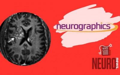 Ambiguous Cerebral Amyloidosis
