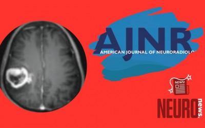 Effect of Piezo1 Overexpression on Peritumoral Brain Edema in Glioblastomas