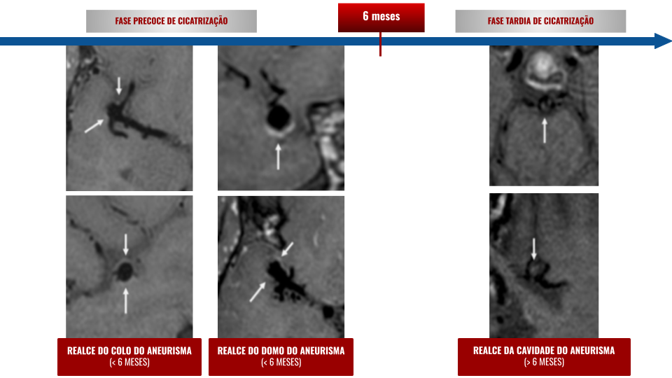 """""""Visualization of Aneurysm Healing - Enhancement Patterns and Reperfusion in Intracranial Aneurysms after Embolization on 3T Vessel Wall MRI"""""""