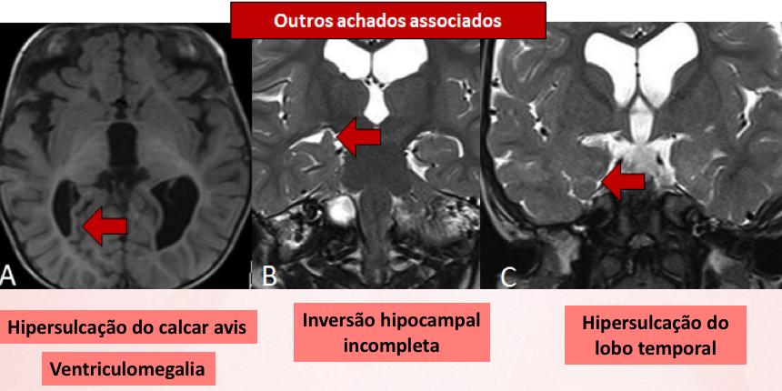 Malformações do lobo temporal na acondroplasia