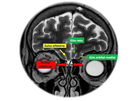 Síndrome de Kallmann unilateral com heterotopias da substância cinzenta