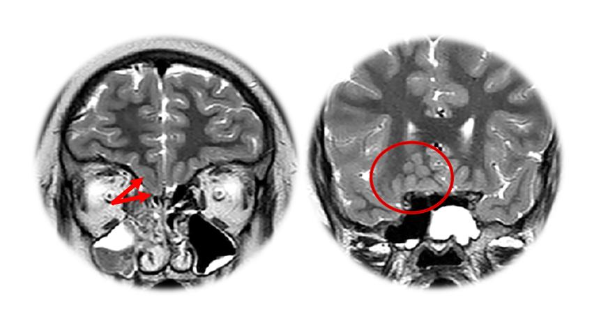 Síndrome de Kallmann unilateral com heterotopia da substância cinzenta