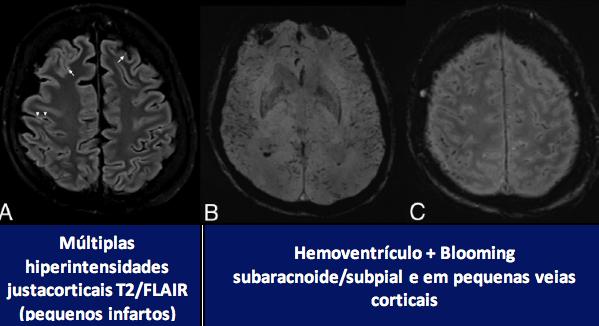 Achados de neuroimagem no COVID-19